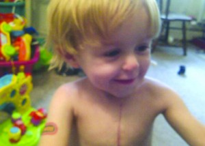 Joshua has had nine surgeries including three open heart surgeries.